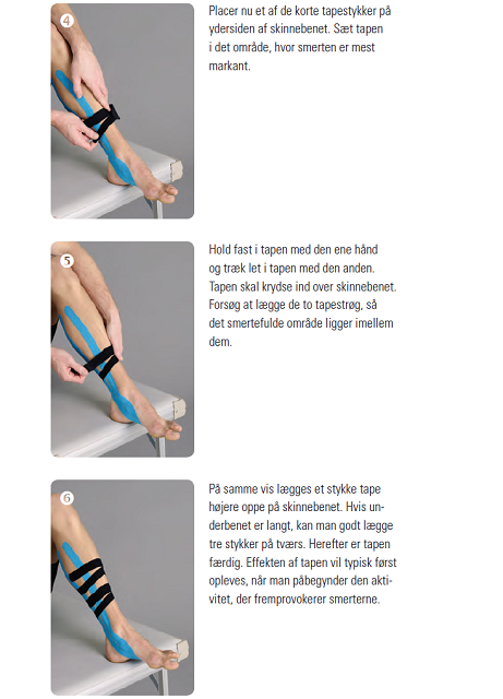 Med Shin Splints 3